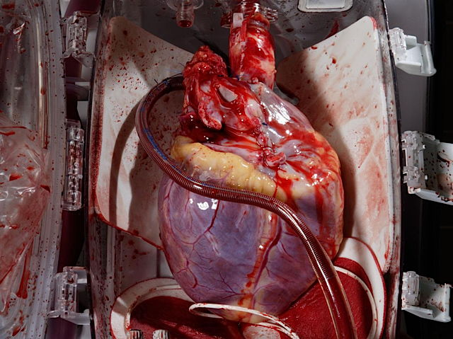 aaaa-a_human_heart_awaits_transplant_in_bodenhausen__germany.jpg