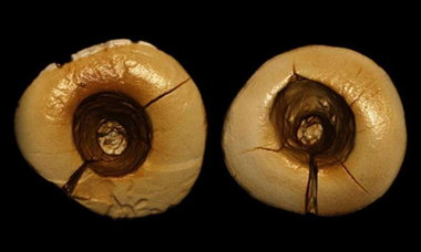 cavity_teeth.jpg__800x600_q85_crop.jpg