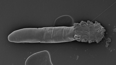 demodex-face-mite.jpg