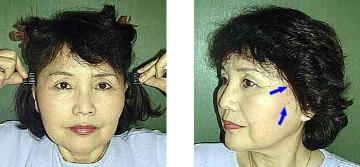 karakuri-ribbon-scalp-stretcher-2.jpg